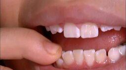 Cuidado com os dentes de leite garante saúde dos permanentes