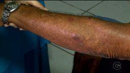 Moradores do Alto da Boa Vista, em Petrolina, recebem serviços de saúde