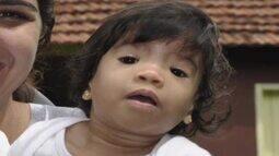 Campanha 'Diga não à sindrome alcoólica fetal' é lançada no Acre