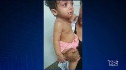 Burocracia atrasa cirurgia urgente a bebê em São Luís
