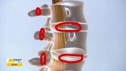 Dores na colunas: médico explica o que é hérnia de disco, os sintomas, causas e prevenção