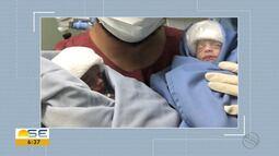 Gêmeas que passaram por cirurgia no útero da mãe nascem em Aracaju