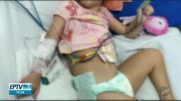 Paciente de 6 anos, em Mogi Mirim, aguarda transferência para realizar cirurgia