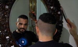 Luciano recorre a implante para lutar contra calvície e piadas da família