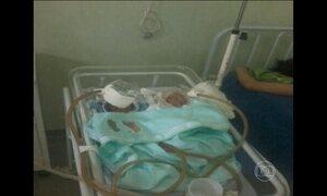 Bebê que respirava com a ajuda de garrafa PET morre no Amazonas