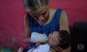 Bebês com microcefalia ficam sem leite especial em Pernambuco