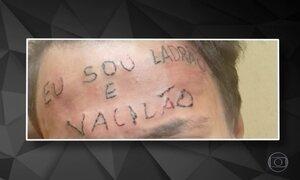 Jovem tem a testa tatuada após ser acusado de furto de bicicleta em SP