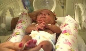 Bebê nasce com 365 gramas, passa por 3 cirurgias e sobrevive