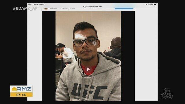 Raulian Paiva fala sobre corte profundo no rosto após derrota no UFC