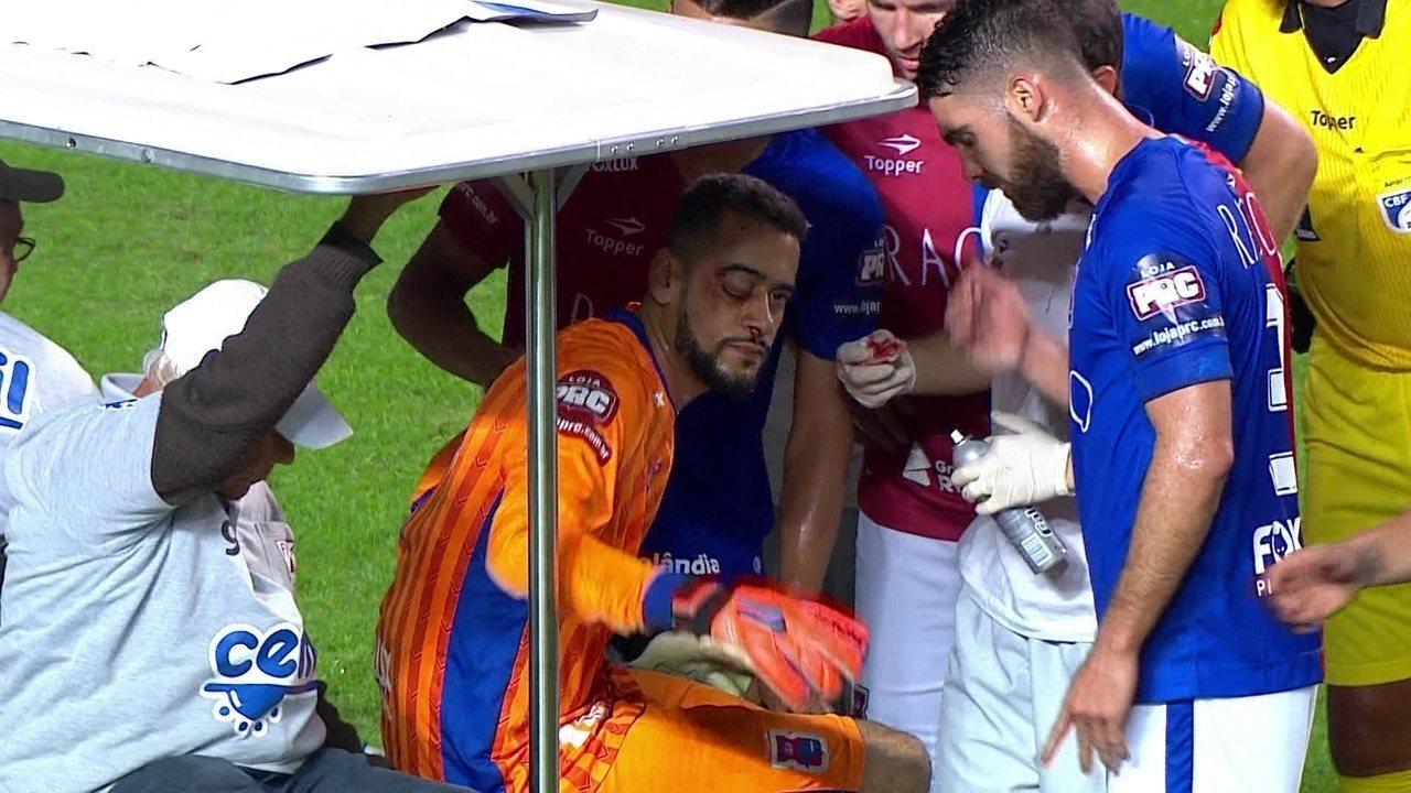 Novos exames confirmam fratura facial no goleiro Léo
