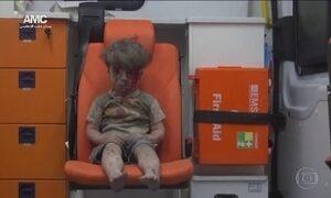 Imagem de criança ferida na guerra da Síria comove o mundo