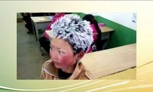 Foto de menino de oito anos com cabelo congelado provoca onda de solidariedade na China