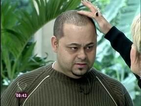 No estúdio, homem mostra o resultado da micropigmentação no couro cabeludo - Ana recebe Wilian Fraga, adepto da nova técnica