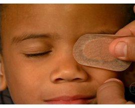 Estrabismo não tratado pode causar perda irreversível da visão - O tratamento com o uso do tampão deve ser feito até os 8 anos de idade. Se não for usado do jeito correto, a criança pode perder a visão em um olho.