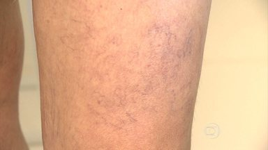 Médicos alertam para a importância da prevenção contra as varizes - As veias dilatadas nas pernas e nos pés são tormento para muita gente. Além dos problemas estéticos e da dor, elas podem evoluir para doenças que oferecem risco à saúde.