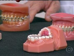 Exames identificam qual o aparelho ortodôntico mais adequado - O ortodontista Claudio Miyake ressalta a importância de ter toda a documentação e fazer um planejamento. Quando tem hábitos envolvidos, o tratamento precisa ser precoce.