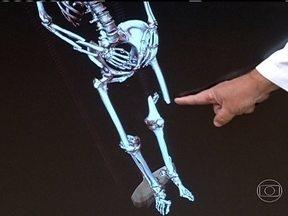Atropelamentos podem causar múltiplas fraturas - Os médicos explicam que movimentar a vítima após um acidente pode provocar uma lesão ainda mais grave. O recomendável é chamar uma ambulância e apenas dar apoio ao acidentado.
