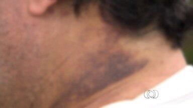 """Homem agredido na garagem de prédio diz que 'pensou que ia morrer' em Goiás - O homem de 50 anos espancado por três jovens na garagem do prédio em que mora, no Setor Bela Vista, em Goiânia, conta que """"pensou que ia morrer"""" na madrugada do último dia 4. Apesar de ter recebido alta médica, a vítima, que prefere não se identificar, ainda possui as marcas da violência no rosto e no pescoço."""