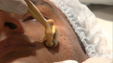 Instrumento com 192 agulhas ajuda a tratar as cicatrizes da acne - Depois que a acne vai embora, fica a cicatriz. Para corrigir o problema, a técnica do microagulhamento causa pequenas perfurações na pele para que ela possa nascer, novamente, mais bonita.