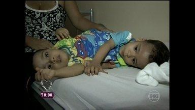 Adriano Reges acompanhou momentos antes da cirurgia dos gêmeos siameses Arthur e Heitor - Os meninos, de 5 anos, passaram por uma cirurgia de separação delicada