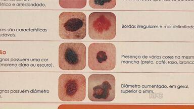 Dermatologista fala sobre cuidados com as pintas - É preciso prestar atenção nas alterações de cor e formato.