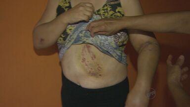 Guarda municipal salva mulher de ataque de cachorro em Bebedouro, SP - Cão fugiu de residência e atacou a vítima que passava pela rua.