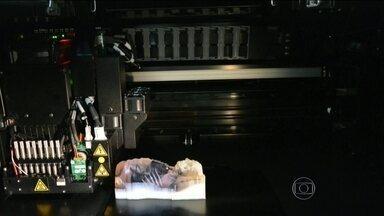 Peças feitas por impressoras 3D ajudam a agilizar cirurgias e a recuperação de pacientes - Com as radiografias e tomografias, um técnico monta o modelo que é impresso. Depois, o pedaço de osso falso serve como molde para próteses e placas de titânio, por exemplo.