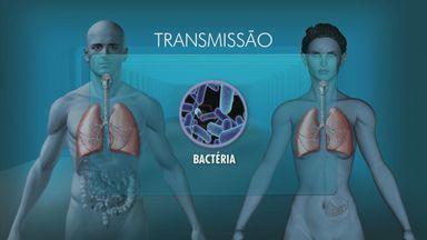 Tuberculose é uma das doenças mais preocupantes no Brasil - Estado de São Paulo concentra o maior número de casos do país.