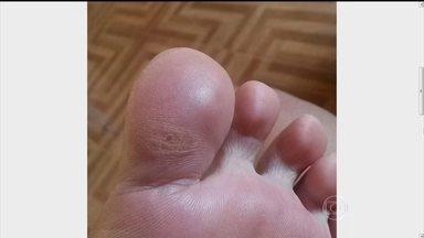 Especialistas falam sobre 'bolhas nos pés' - O Bem Estar desta quarta-feira (18), fala sobre doenças que levam crianças a mancar. O programa aborda o tema também sobre bolhas no pé. Confira dicas de especialistas para evitar esse problema.