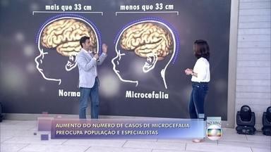 Doutor Fernando Gomes explica o que é a microcefalia - O número de casos tem aumentado e assustado muitas famílias e especialistas