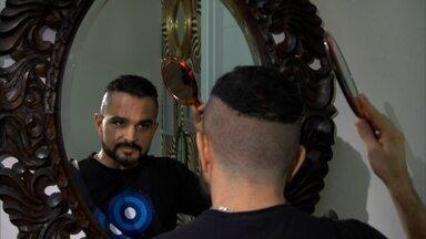 Luciano recorre a implante de cabelo para lutar contra a calvície e piadas da família - O cantor sertanejo decidiu passar por uma transformação no visual. O número desse tipo de cirurgia aumentou 30% no último ano, de acordo com centro de pesquisa americano.