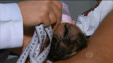 Existe novo padrão para definição de crianças que nascem com microcefalia - O padrão é feito de acordo com estudos de cientistas brasileiros e especialistas da Organização Mundial de Saúde. A medição da cabeça deve ocorrer, preferencialmente, nas primeiras 24 horas do nascimento.