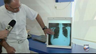 Especialista ensina como prevenir a pneumonia durante o período de frio - Especialista ensina como prevenir a pneumonia durante o período de frio