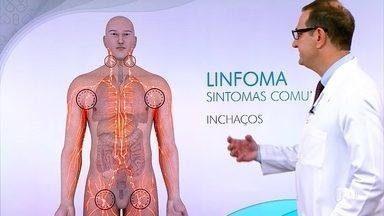 Conheça os sintomas do linfoma não-Hodgkin - O corpo tem áreas de defesa. São os gânglios linfáticos e os linfócitos no sangue que vão combater as infecções. Quando os linfócitos se proliferam de maneira desordenada, é preciso examinar em busca de um diagnóstico médico.