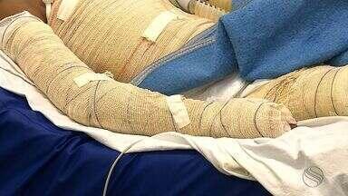 Huse recebe mais de 60 feridos com queimaduras somente neste mês de junho - Huse recebe mais de 60 feridos com queimaduras somente neste mês de junho.