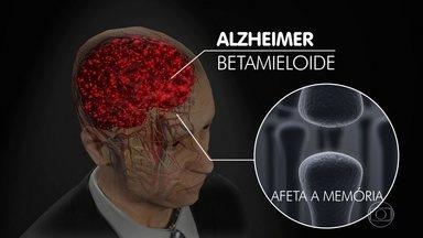 Bem Estar mostra uma dieta boa para o cérebro - A vida vai nos enchendo de experiências que vão virando lembranças, colorindo a existência. Mas algumas doenças, são capazes de atrapalhar a festa.