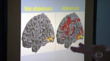 Células do cérebro ganham movimento e luz após alfabetização - Estudo de pesquisadores do Hospital Sarah Kubitschek mostra que, após alfabetização, o cérebro ativa funções que estavam adormecidas.
