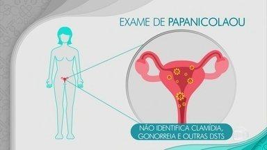 Exame de papanicolau serve para detectar lesões no colo do útero - O exame deve ser feito uma vez por ano por toda a mulher. Ele faz o diagnóstico de lesões pré-cancerosas e cancerosas.