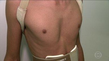 Peito escavado atinge uma em cada 700 pessoas - O afundamento no peito de Pedro chamou a atenção aos 12 anos. A deformidade não tem nada a ver com magreza, mas com a doença pectus excavatum. É o crescimento excessivo de cartilagem e o afundamento do osso externo