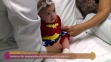 Helena precisou ser separada da gêmea siamesa logo após o parto - Pais e equipe médica comemoraram a alta da bebê depois de seis meses de internação