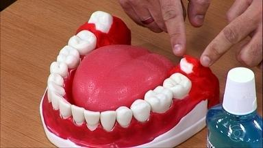 Siso precisa ser retirado em 90% dos casos - O chamado 'dente do juízo', que costuma nascer entre os 15 e os 17 anos, pode causar inflamações e dores. O procedimento de remoção é simples; só exige alguns cuidados no pós-operatórios.