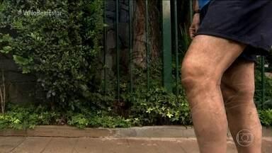 Tratamento dá esperanças para quem tem artrose em fase inicial - Com esse tratamento, é possível a pessoa sair do hospital sem prótese ou muletas.