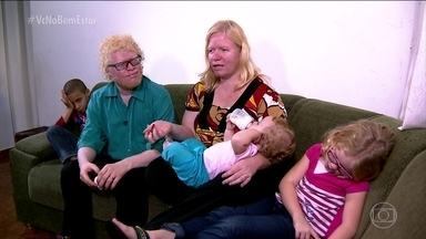 Número de albinos é desconhecido no Brasil - Às vezes, uma criança nasce muito loira, de olhos azuis, e os parentes nem desconfiam que ela pode ser albina. Uma família conta que evira se expor ao sol, mas que se protegem com protetor solar sempre que sai de casa.