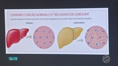Médico explica sobre causas, consequências e tratamento da gordura no fígado - Especialista explica que é comum muita gente ter gordura no fígado. A quantidade é que indica se a situação é preocupante e exige tratamento.