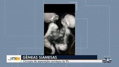 Um dia após nascimento, gêmeas siamesas passam por cirurgia de separação em Goiânia - Operação emergencial foi motivada por problema cardíaco de uma das crianças. Unidas pelo tórax e abdômen, elas compartilham o fígado; mãe saiu da Bahia para dar à luz na capital goiana.