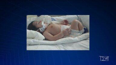 Transferência hospitalar de bebê com cardiopatia é negada no Maranhão - Criança está internada em um hospital público em São Luís e precisa da ajuda do governo do Estado para se tratar.