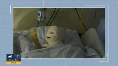 Hospital da Baleia diz que fagulha em bisturi causou queimadura em bebê - Criança de 1 ano teve queimaduras durante cirurgia em agosto.