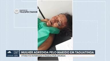 Mulher é hospitalizada depois de ser agredida pelo marido em Taguatinga - Ana Célia de Carvalho, de 40 anos, foi espancada na última quarta-feira, na QND 08, em Taguatinga Norte. Ela passou por cirurgia e está consciente. O agressor ainda não foi localizado pela polícia.