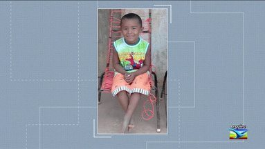 Menino que sofreu acidente em carvoaria morre em Goiânia - João Miguel Costa, de cinco anos, teve 60% do corpo queimado