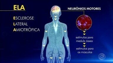 Sorocaba tem campanha de conscientização sobre esclerose lateral amiotrófica - Uma doença de causa desconhecida e que atinge 1 a cada 100 mil pessoas no mundo: a esclerose lateral amiotrófica, que afeta os neurônios que comandam os músculos.